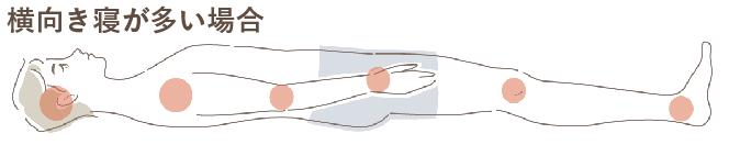褥瘡予防マットレスの選び方